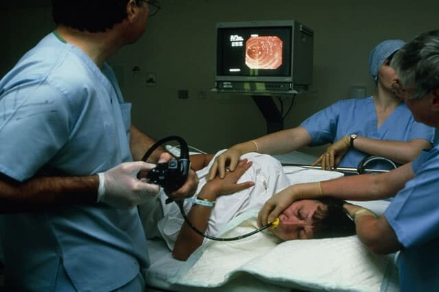 Broncoscopia, endoscopia respiratória Sorocaba