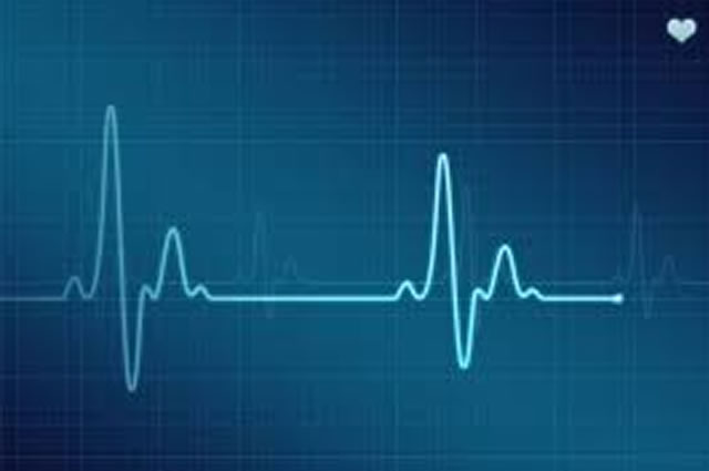 Eletrocardiograma Sorocaba